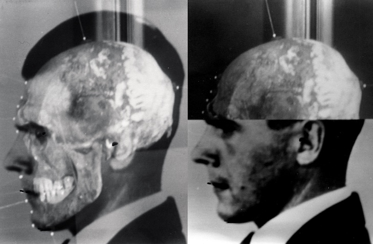 Mengele's Skull, 2012. Thomas Keenan and Eyal Weizman.  Courtesy of the artists and Richard Helmer and Maja Helmer Kopie 2